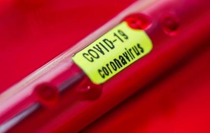 Alytuje patvirtintas pirmasis koronaviruso atvejis